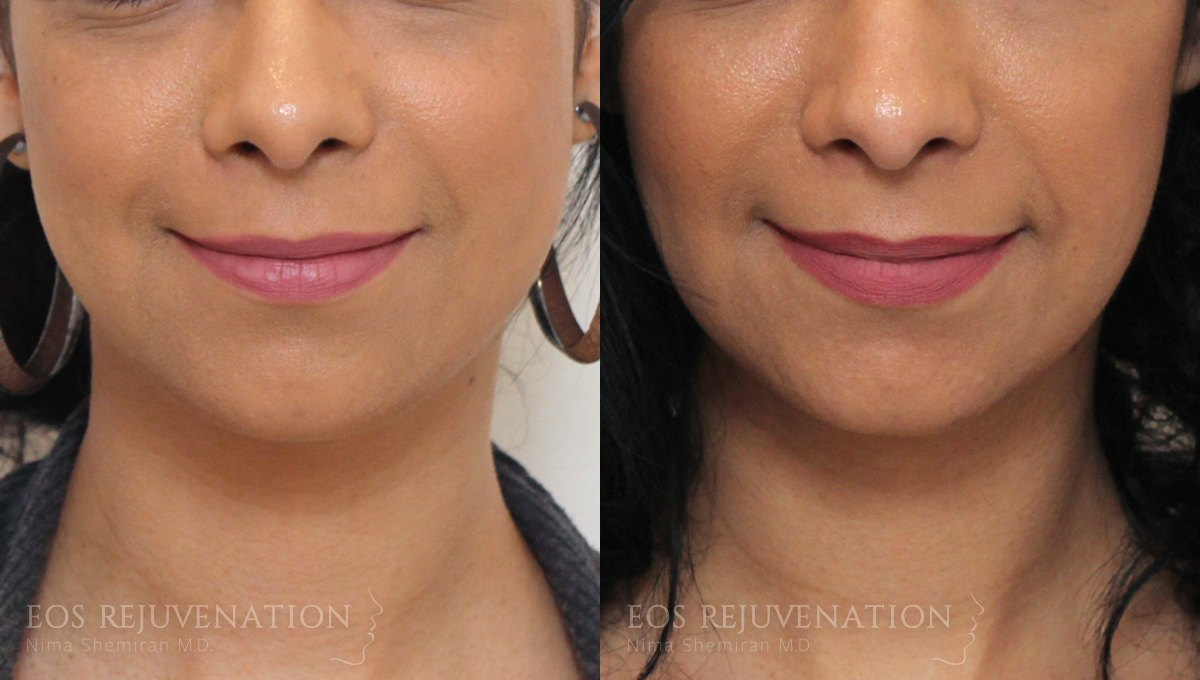 Patient 6a Botox® Before and After