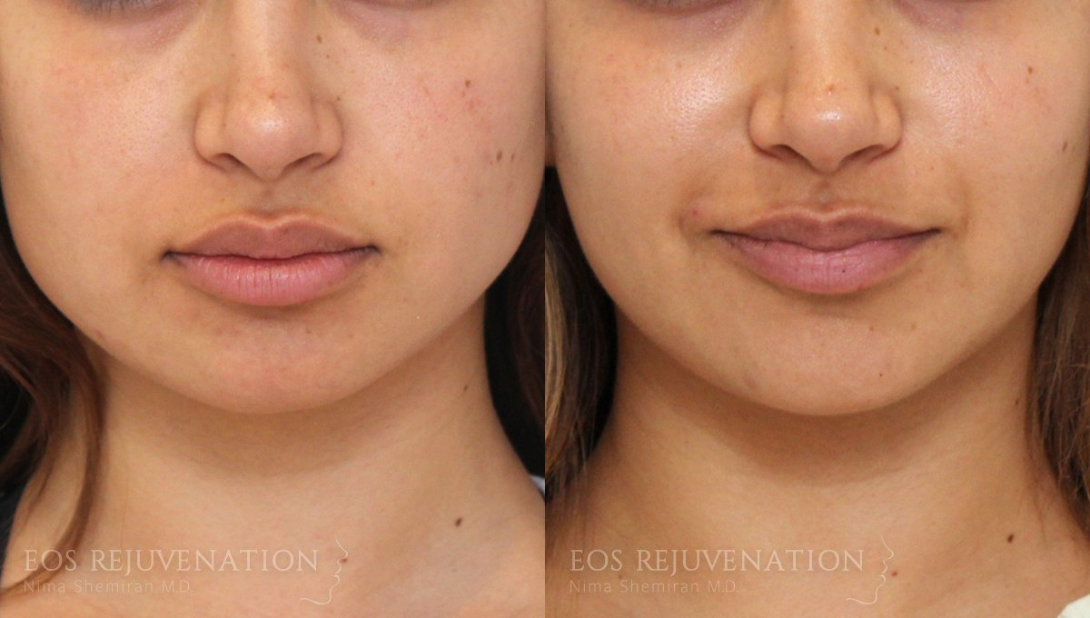 Patient 7 Botox® Before and After