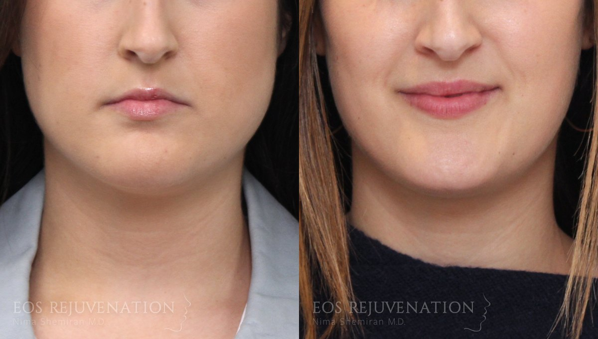 Patient 8 Botox® Before and After
