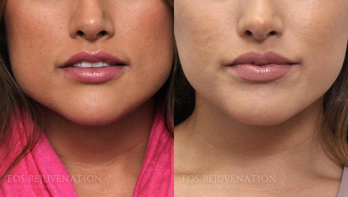 Patient 9 Botox® Before and After