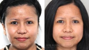 Patient 1a Microneedling Before and After