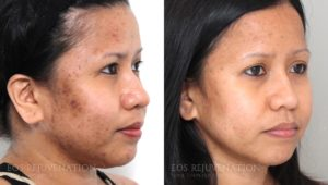 Patient 1b Microneedling Before and After