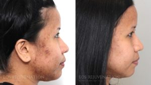 Patient 1c Microneedling Before and After
