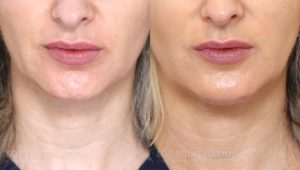 Patient 3a Microneedling Before and After