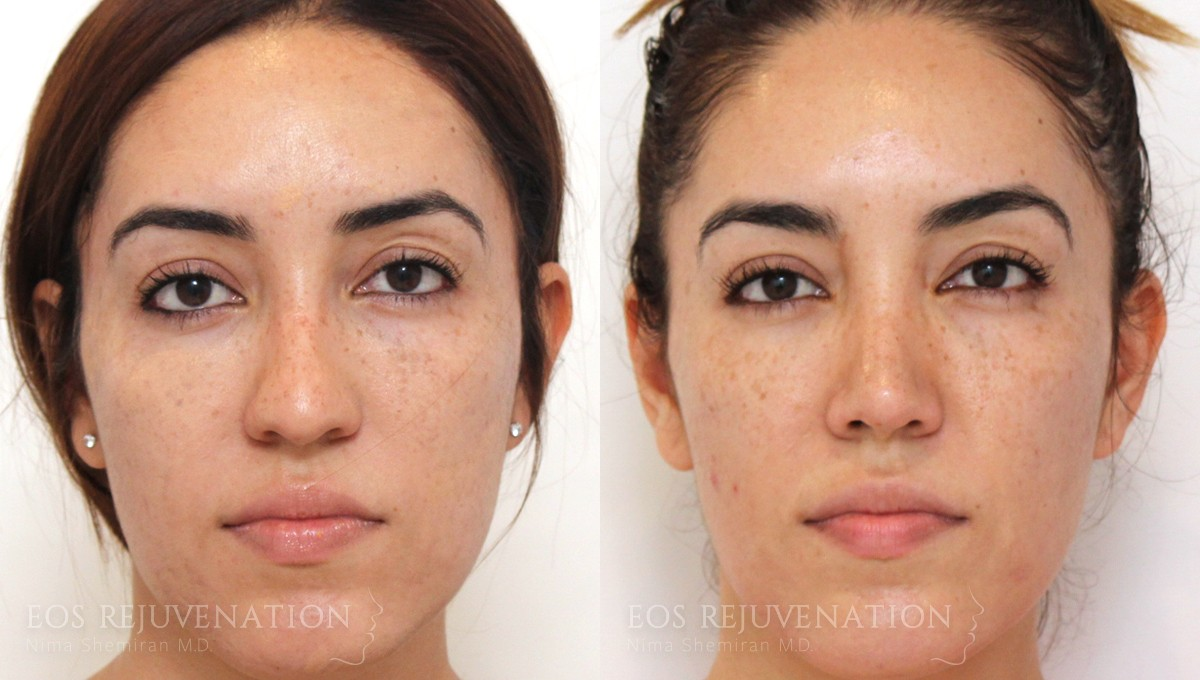 Patient 2a Microneedling Before and After