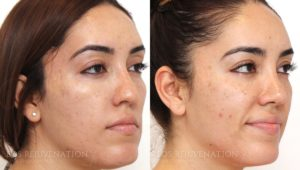 Patient 2b Microneedling Before and After