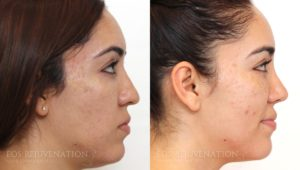 Patient 2c Microneedling Before and After