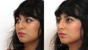 Patient 4b Nonsurgical Rhinoplasty Before and After