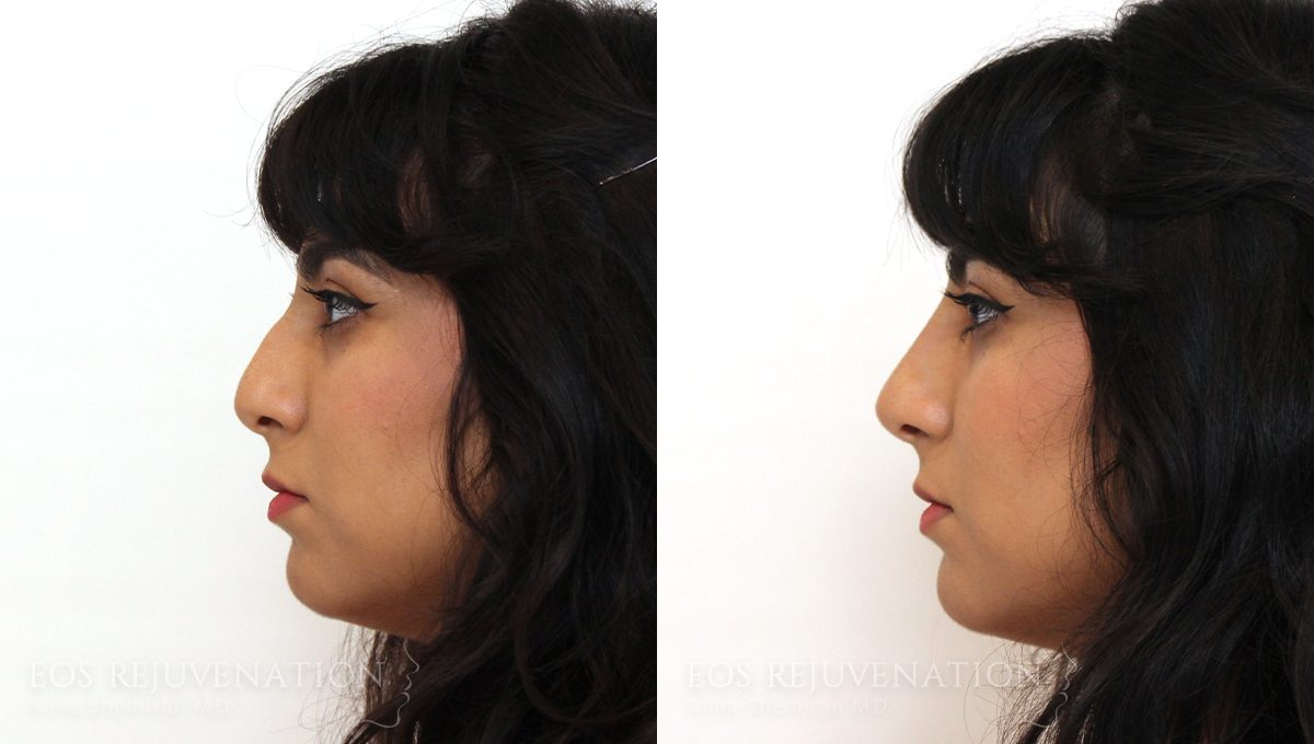 Patient 4a Nonsurgical Rhinoplasty Before and After