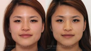 Patient 3b Nonsurgical Rhinoplasty Before and After