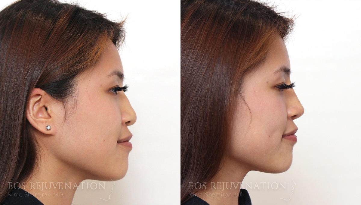 Patient 3a Nonsurgical Rhinoplasty Before and After