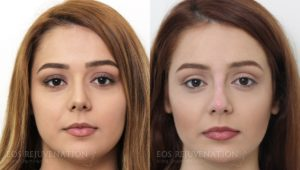 Patient 2c Nonsurgical Rhinoplasty Before and After