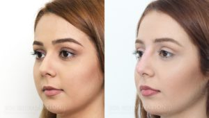 Patient 2b Nonsurgical Rhinoplasty Before and After