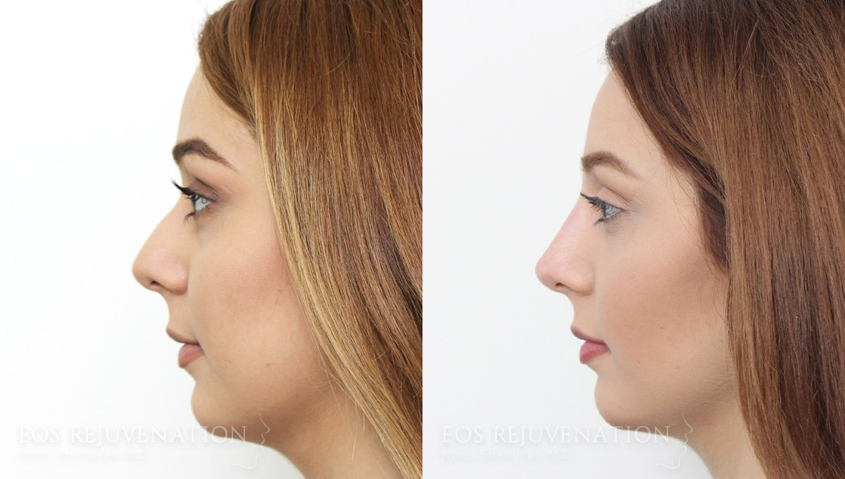 Patient 2a Nonsurgical Rhinoplasty Before and After