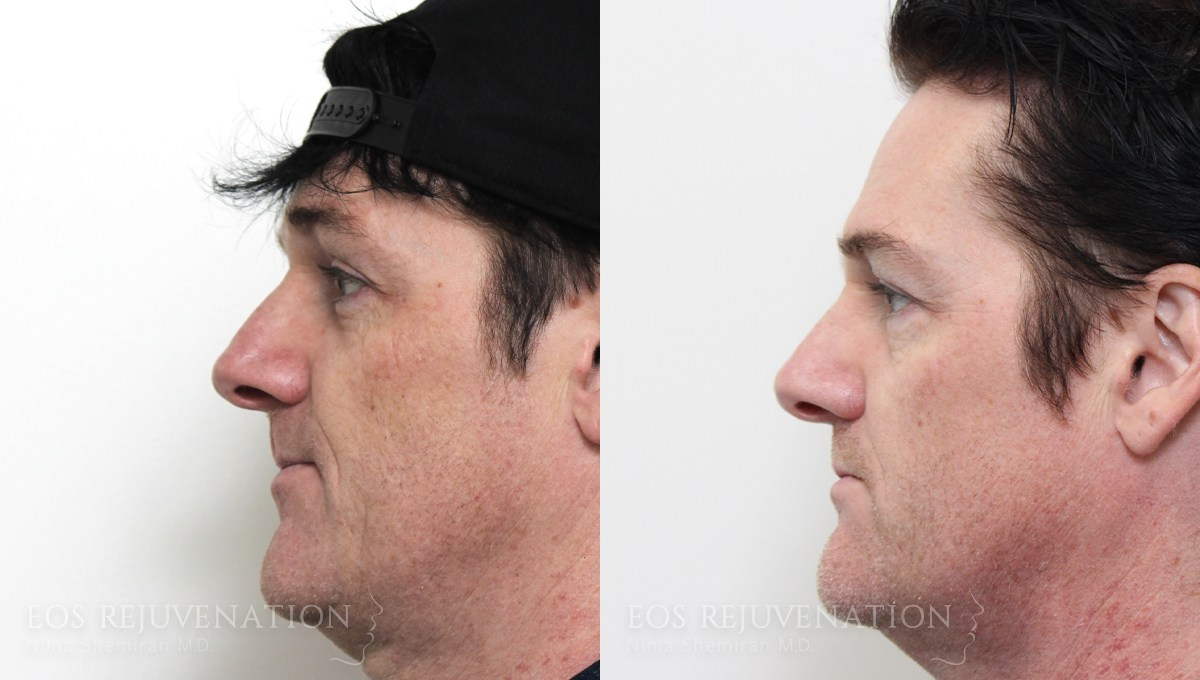 Patient 6a Nonsurgical Rhinoplasty Before and After