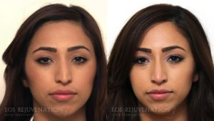 Patient 5b Nonsurgical Rhinoplasty Before and After