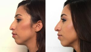 Patient 5a Nonsurgical Rhinoplasty Before and After