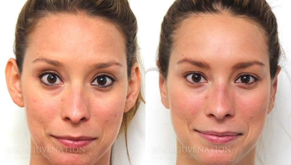 Patient 1a Otoplasty Before and After