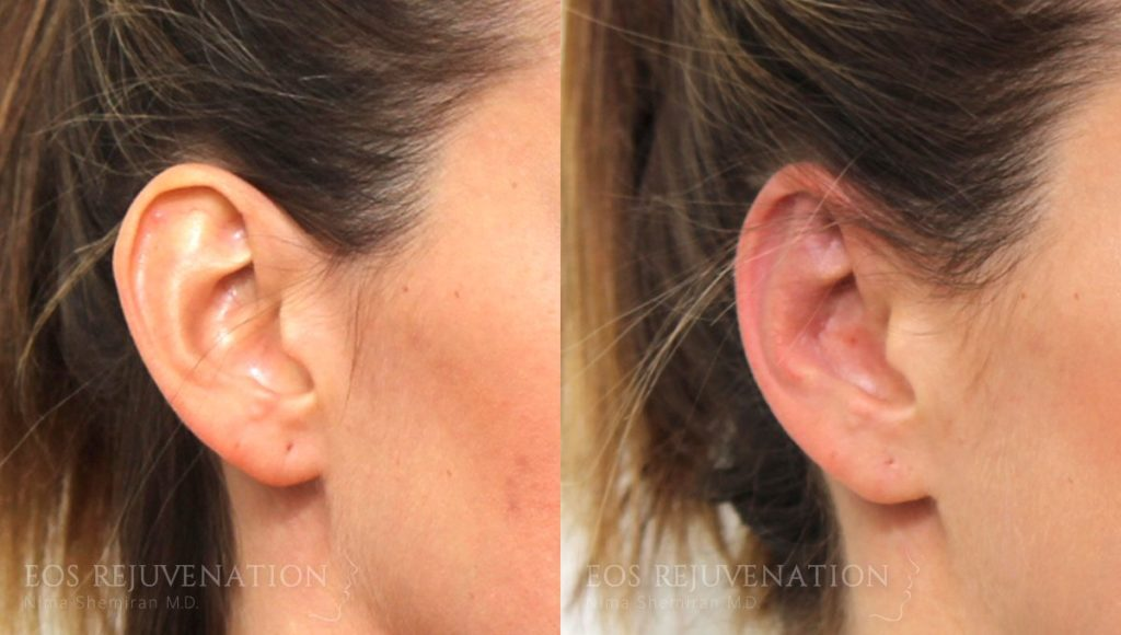 Patient 1b Otoplasty Before and After