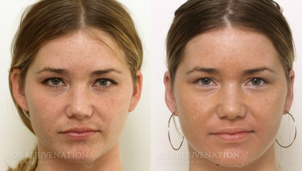 Patient 2a Otoplasty Before and After