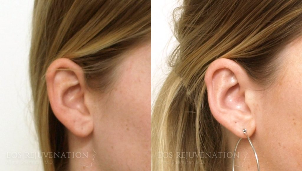 Patient 2b Otoplasty Before and After