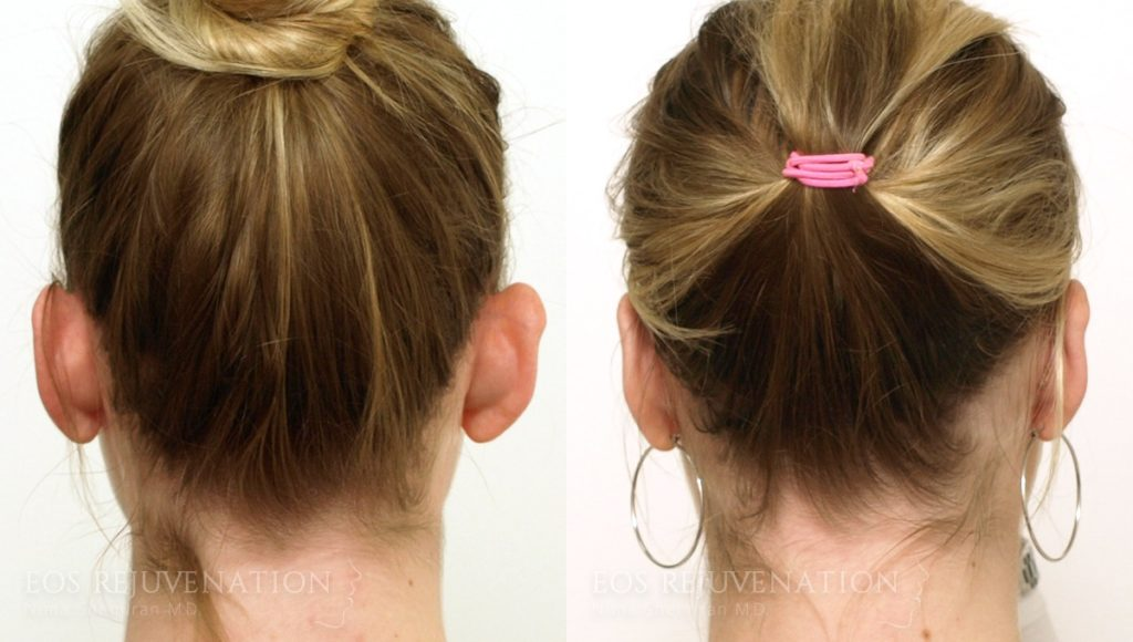 Patient 2c Otoplasty Before and After
