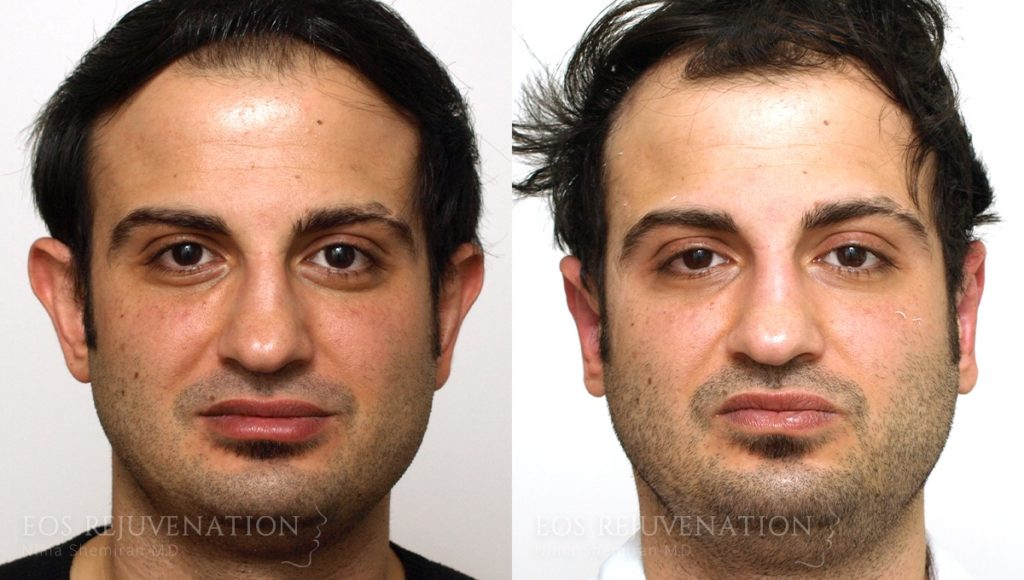 Patient 4a Otoplasty Before and After
