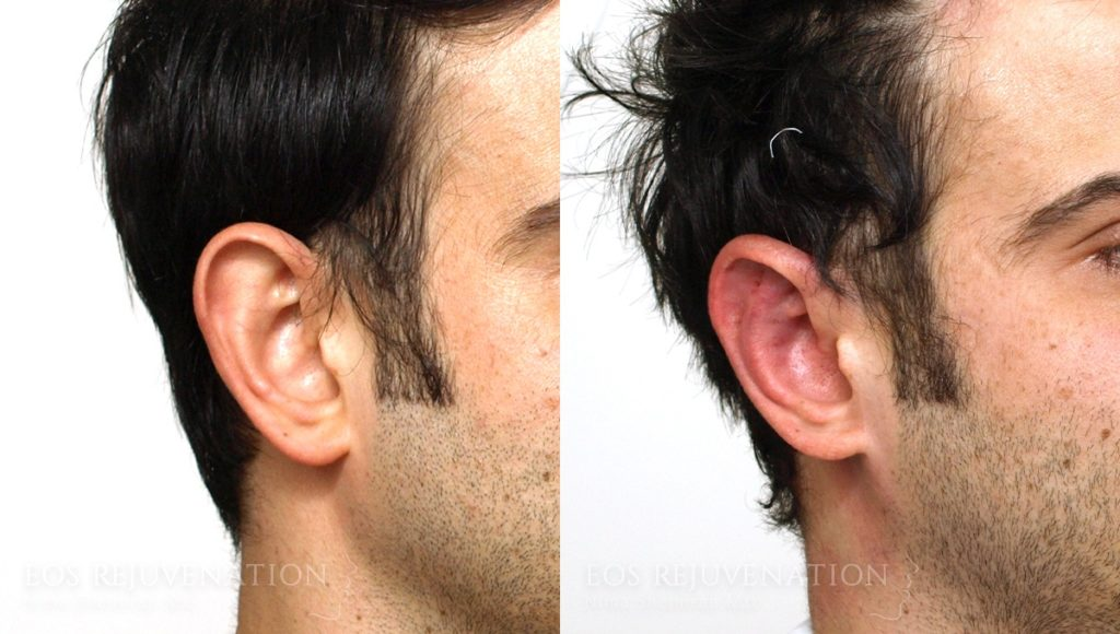 Patient 4b Otoplasty Before and After
