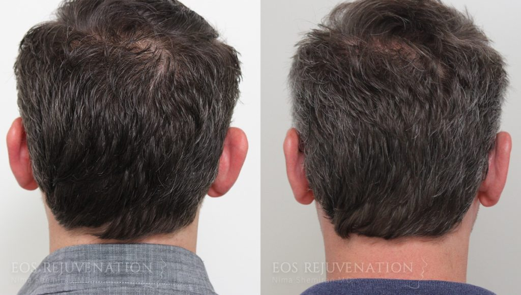 Patient 7 Otoplasty Before and After