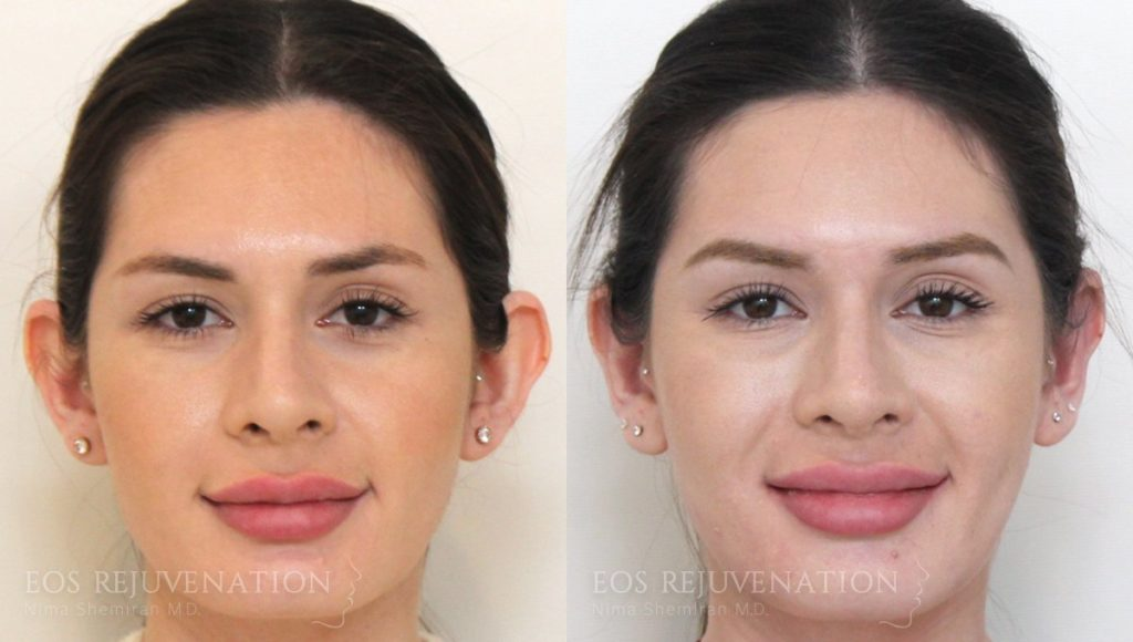 Patient 5a Otoplasty Before and After