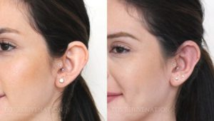 Patient 5b Otoplasty Before and After