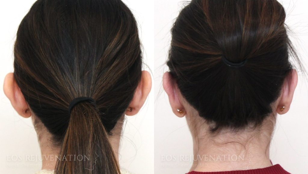 Patient 5d Otoplasty Before and After