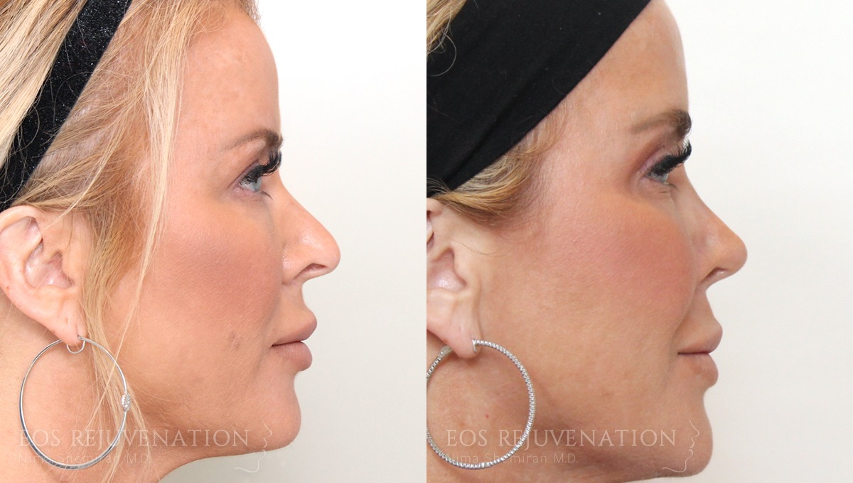 Patient 8a Revision Rhinoplasty Before and After