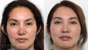 Patient 3c Revision Rhinoplasty Before and After