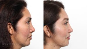 Patient 3a Revision Rhinoplasty Before and After