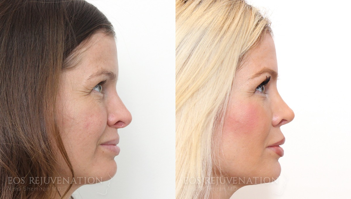 Patient 2a Revision Rhinoplasty Before and After