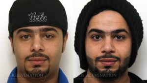 Patient 12c Revision Rhinoplasty Before and After