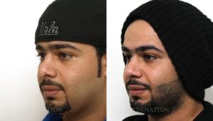Patient 12b Revision Rhinoplasty Before and After
