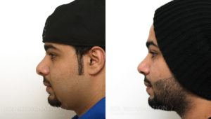 Patient 12a Revision Rhinoplasty Before and After