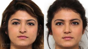 Patient 4c Revision Rhinoplasty Before and After