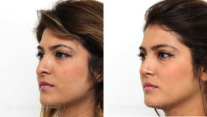 Patient 4b Revision Rhinoplasty Before and After