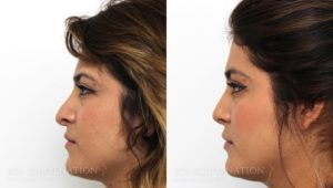 Patient 4a Revision Rhinoplasty Before and After