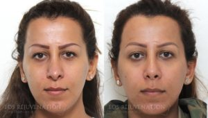 Patient 5c Revision Rhinoplasty Before and After