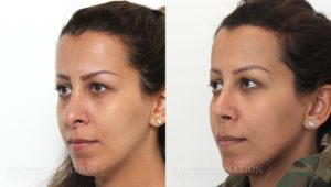 Patient 5b Revision Rhinoplasty Before and After