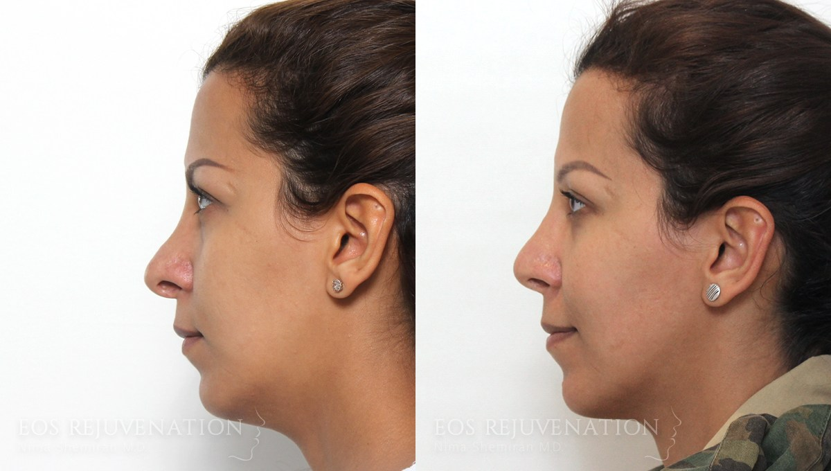 Patient 5a Revision Rhinoplasty Before and After