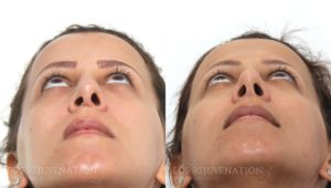 Patient 5d Revision Rhinoplasty Before and After