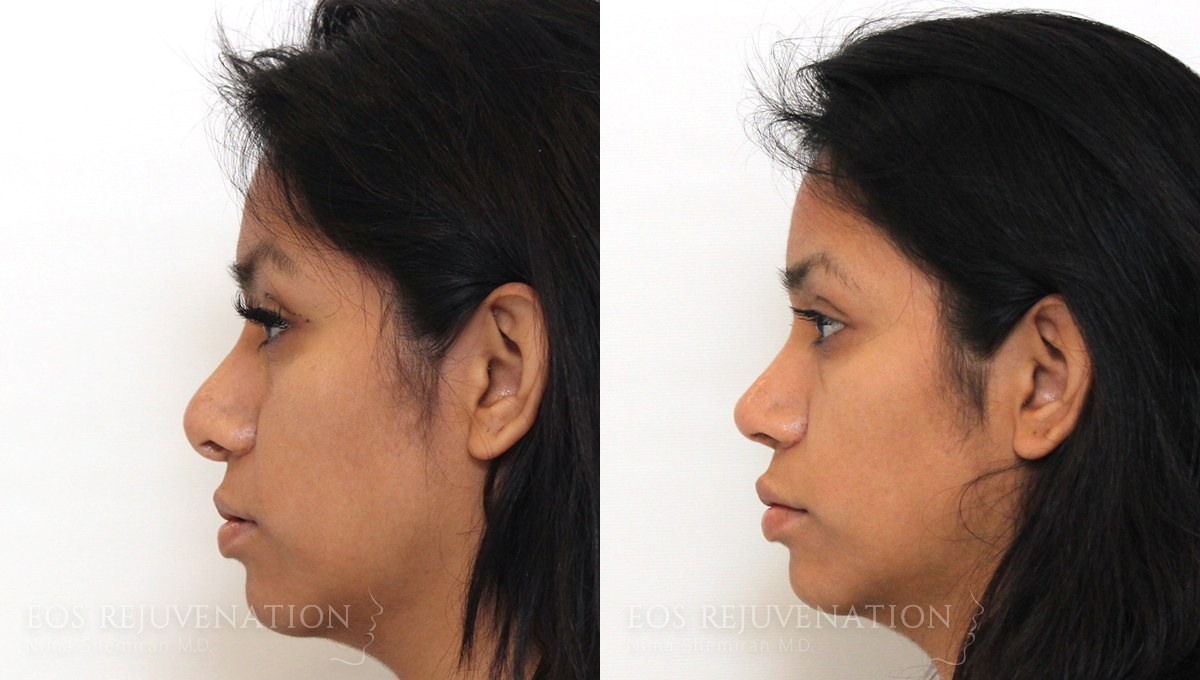 Patient 6a Revision Rhinoplasty Before and After