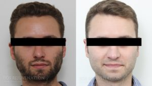 Patient 7c Revision Rhinoplasty Before and After