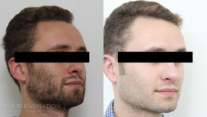 Patient 7b Revision Rhinoplasty Before and After