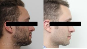 Patient 7a Revision Rhinoplasty Before and After